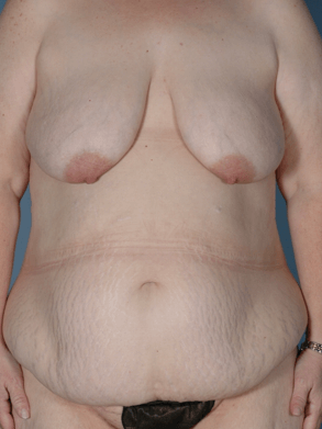 Frontal View - Breast, Abdomen Before