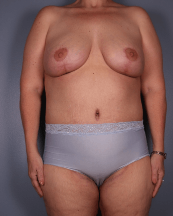 Frontal View - Breast, Abdomen After