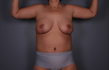 Frontal View - Breast, Arms After