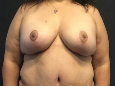 Frontal View - Breasts After