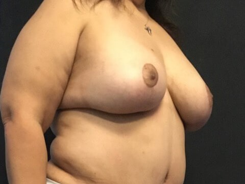 Oblique View - Breasts After