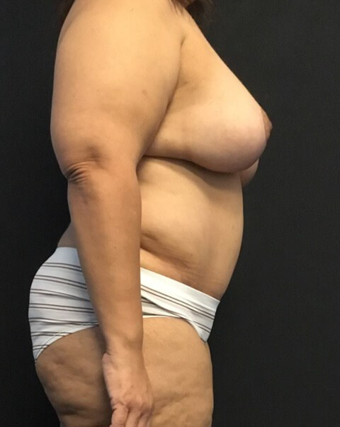 Lateral View - Breasts After