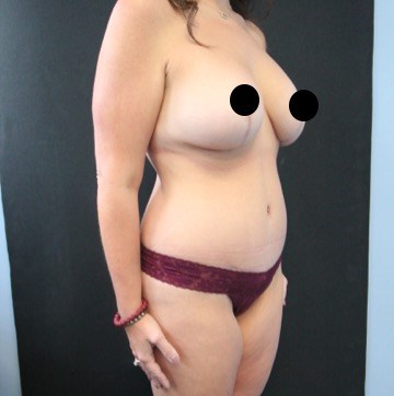 Side View - Breasts After (6 months)