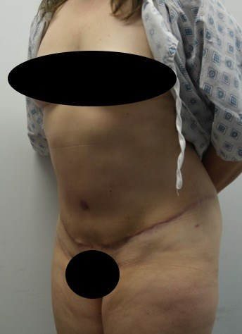 Oblique View After (4 months)
